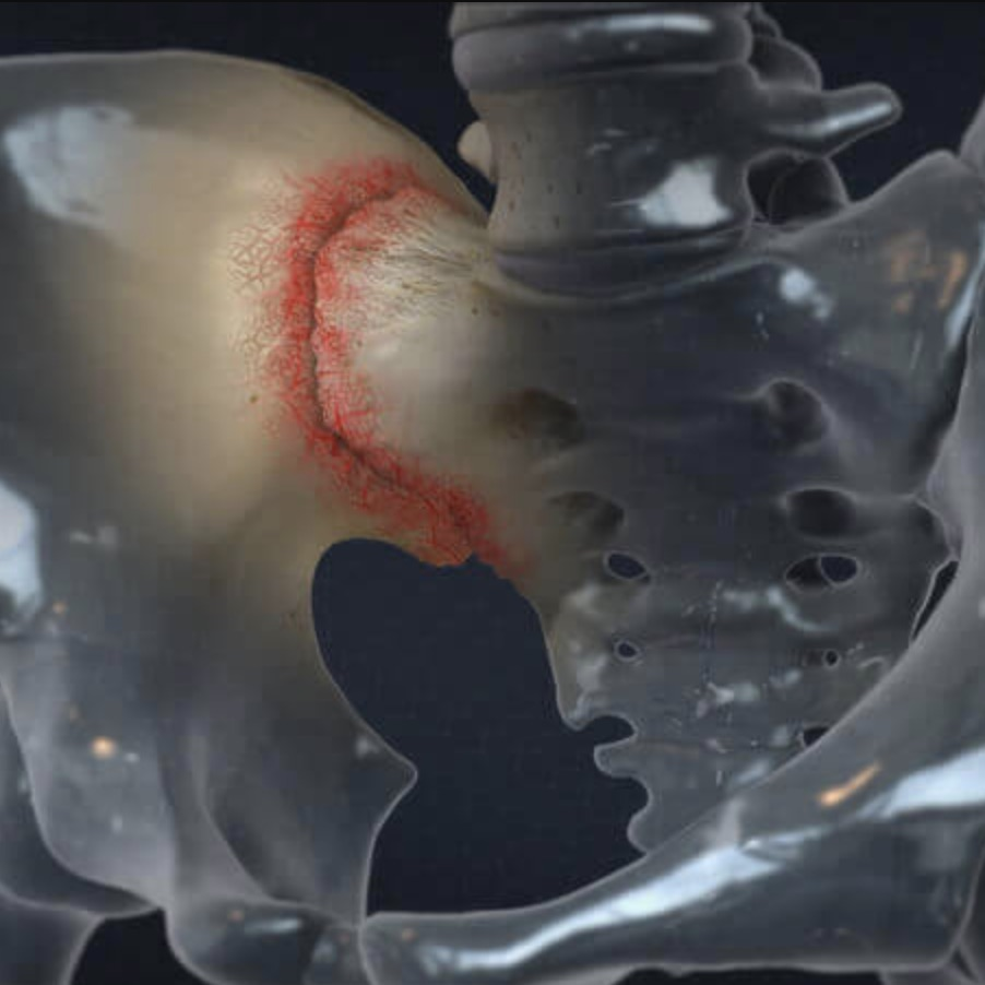 Dysfunction in the sacroiliac joint can be helped by some re-alignment and exercises at Atlanta Sport and Spine Physical Therapy